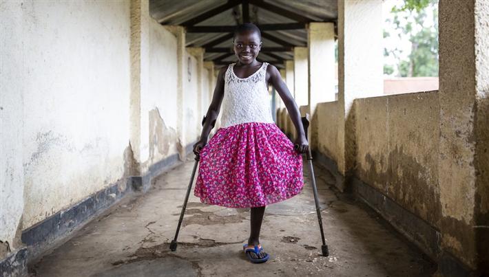 Das Bein der 10-jährigen Kelvine aus der Demokratischen Republik Kongo musste nach einem Rebellen-Angriff amputiert werden. © Patrick Meinhardt / Handicap International
